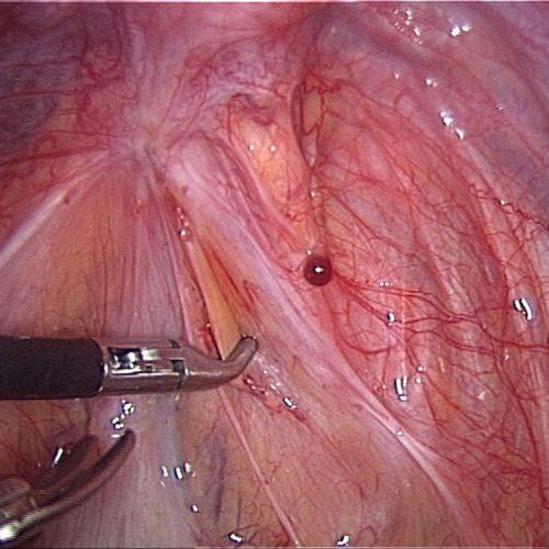 Lésions superficielles endométriose