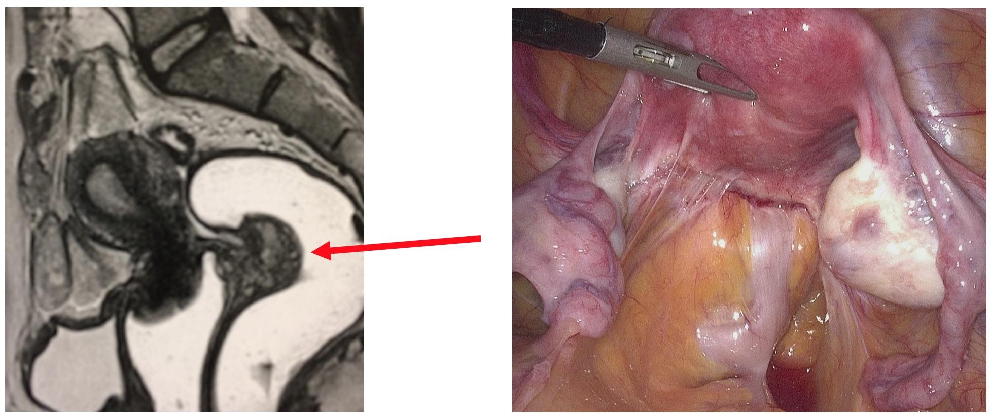 Chirurgie digestive nodule endométriose profonde