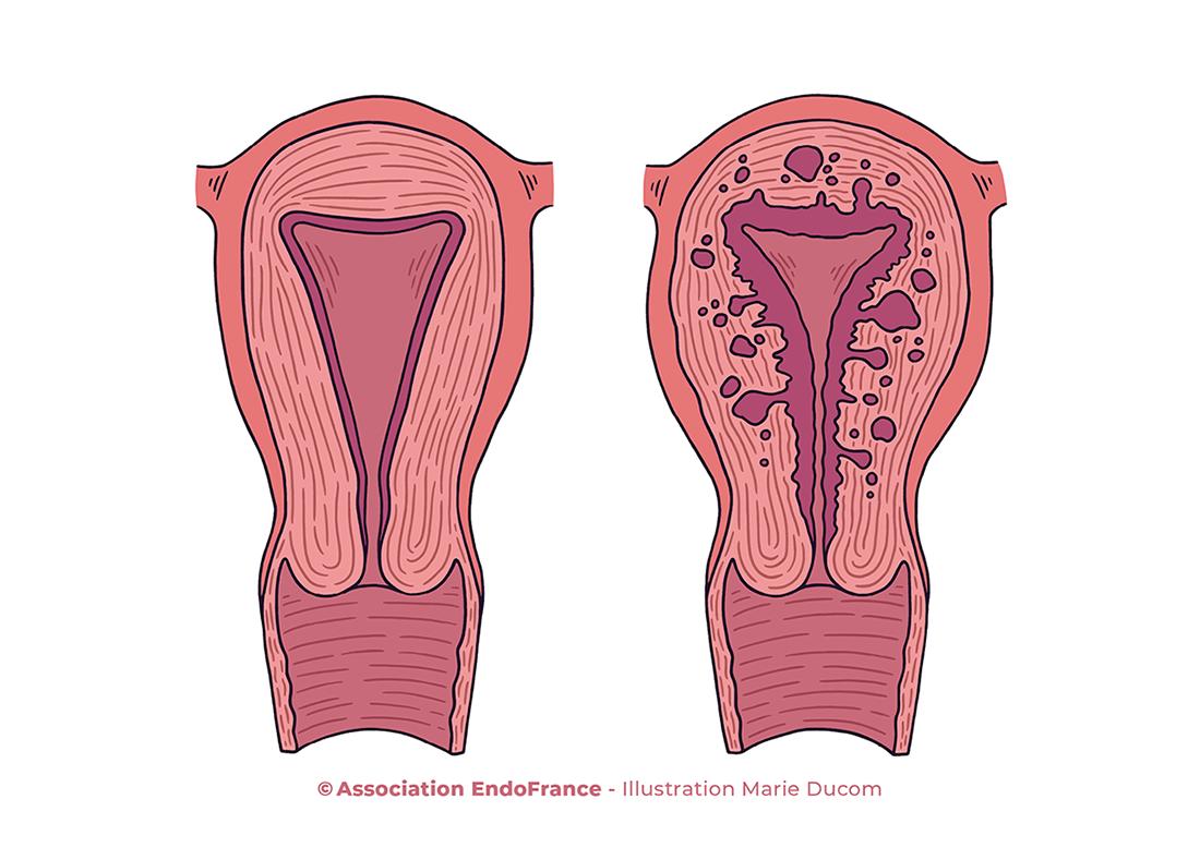 Schéma adénomyose EndoFrance