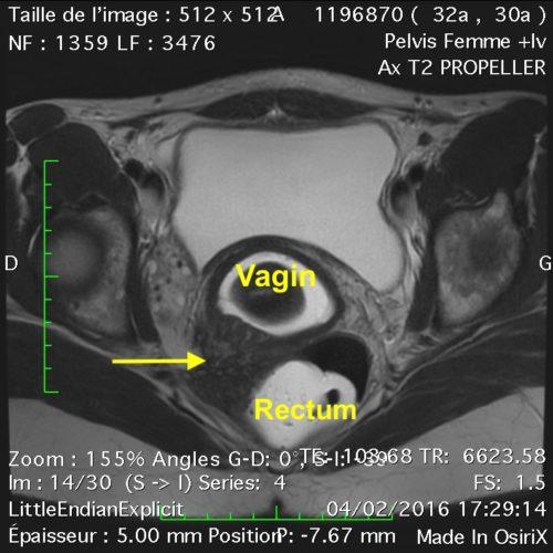 pelvis endométriose