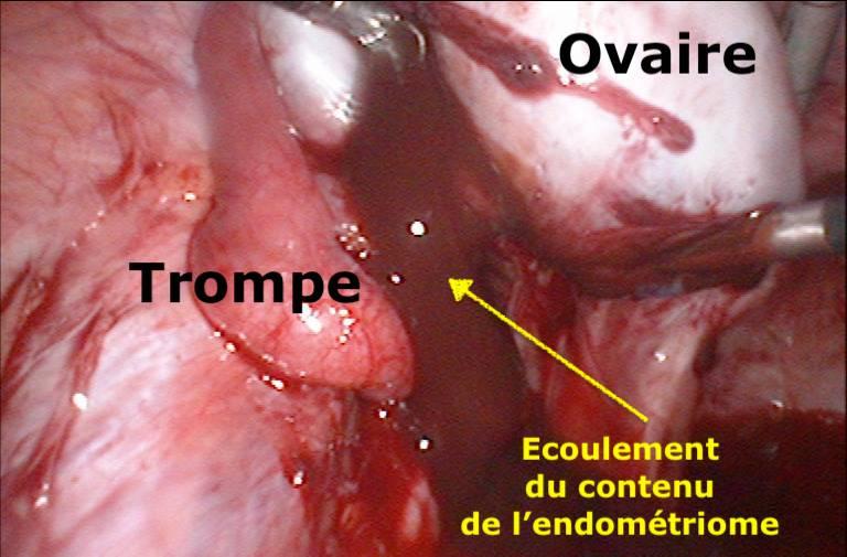 Rupture kyste endométriome endométriose