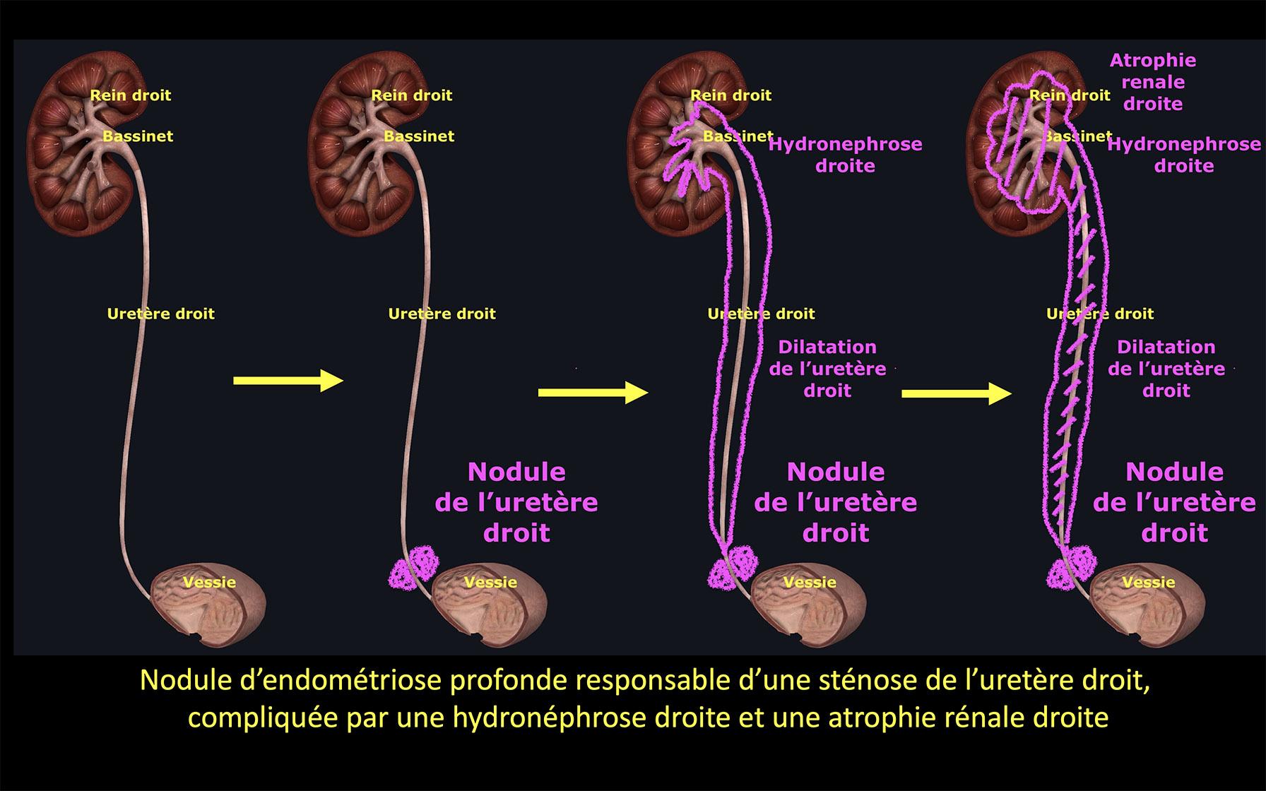Endométriose urologique schéma
